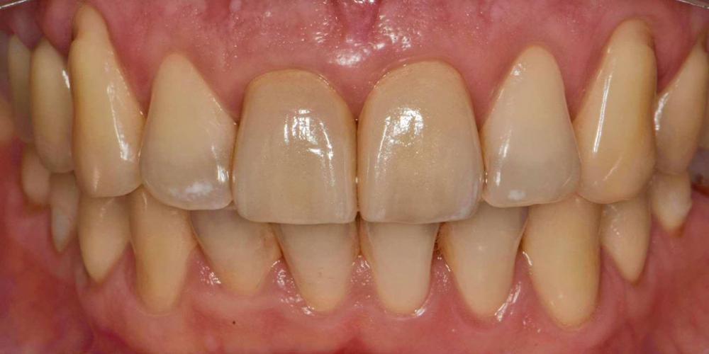 После лечения. Эстетическая реабилитация центральных резцов верхней челюсти цельнокерамическими реставрациями e max