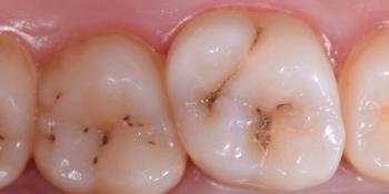 Лечение кариеса 1.6 и 1.7 зубов фото до лечения