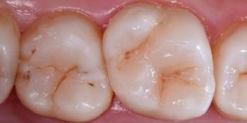 Лечение кариеса 1.6 и 1.7 зубов фото после лечения