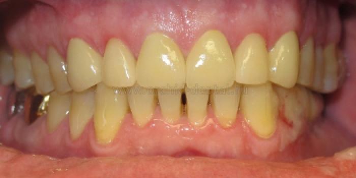 Виниры на зубы фото после лечения