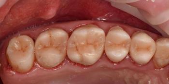 Реабилитация жевательной группы зубов фото после лечения