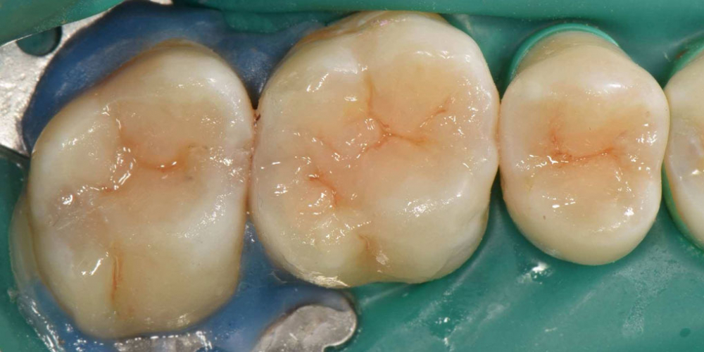 Реставрация трех жевательных зубов