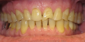 Виниры на зубы фото до лечения