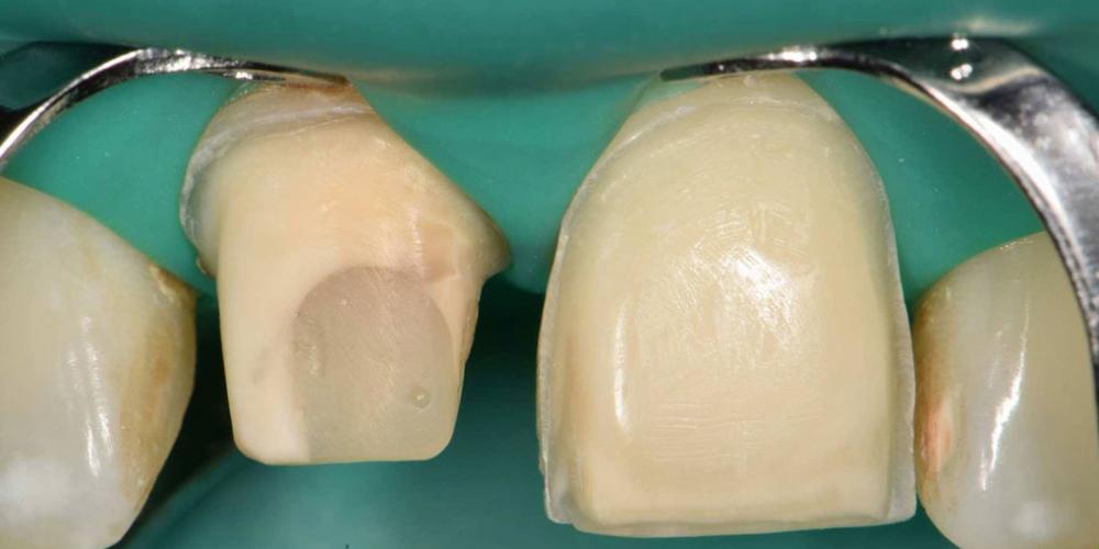 Эстетическая реабилитация центральных резцов верхней челюсти цельнокерамическими реставрациями e max