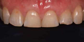 Эстетическая реабилитация фронтальной группы зубов методом прямой композитной реставрации фото до лечения