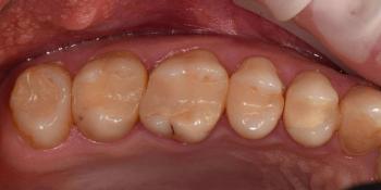 Реабилитация жевательной группы зубов фото до лечения