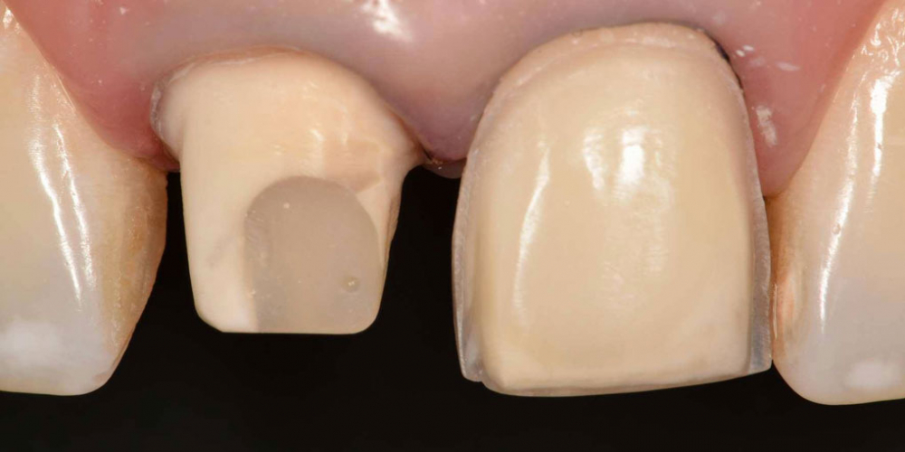 Препарирование. Эстетическая реабилитация центральных резцов верхней челюсти цельнокерамическими реставрациями e max