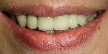Имплантация зубов, металлокерамическая коронка фото после лечения