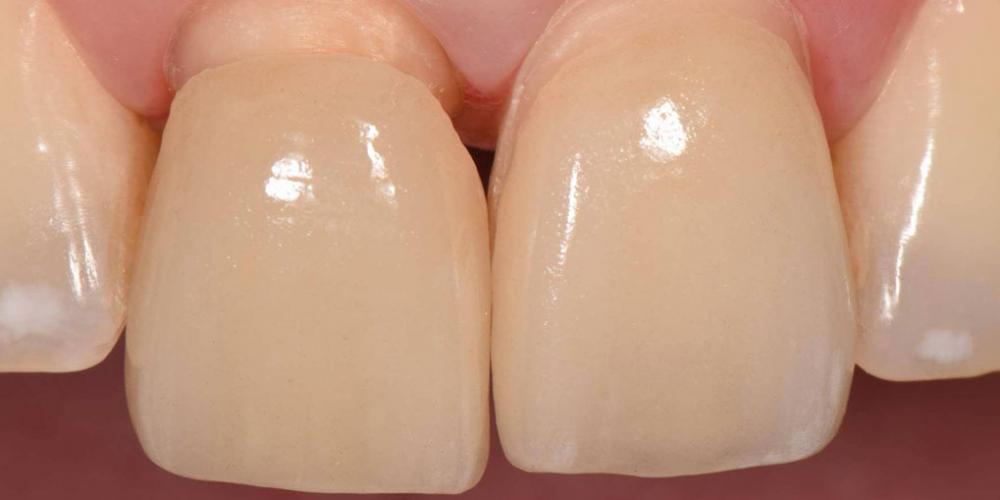 Примерка на зубы. Эстетическая реабилитация центральных резцов верхней челюсти цельнокерамическими реставрациями e max