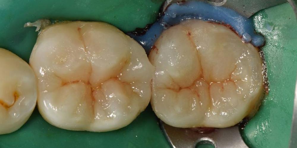 Лечение вторичного кариеса и прямая реставрация 3.6 и 3.7 зуба материалом Estelite Asteria