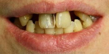 Имплантация зубов, металлокерамическая коронка фото до лечения
