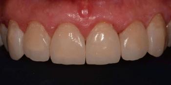Эстетическая реабилитация фронтальной группы зубов методом прямой композитной реставрации фото после лечения