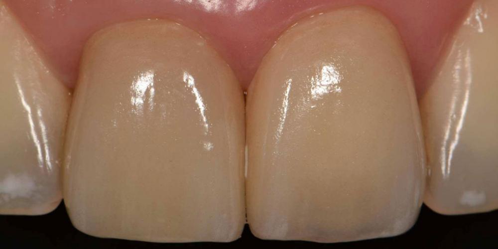 Результат. Эстетическая реабилитация центральных резцов верхней челюсти цельнокерамическими реставрациями e max