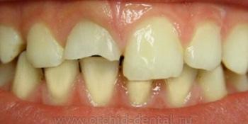 Эстетическая реставрация переднего зуба фото до лечения