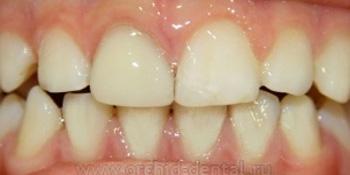 Эстетическая реставрация переднего зуба фото после лечения