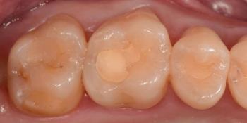 Реставрация трех жевательных зубов фото до лечения