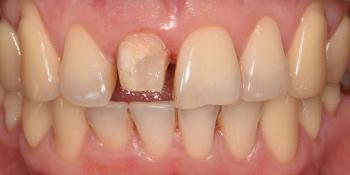 Эстетическая реабилитация центральных резцов верхней челюсти цельнокерамическими реставрациями e max фото до лечения