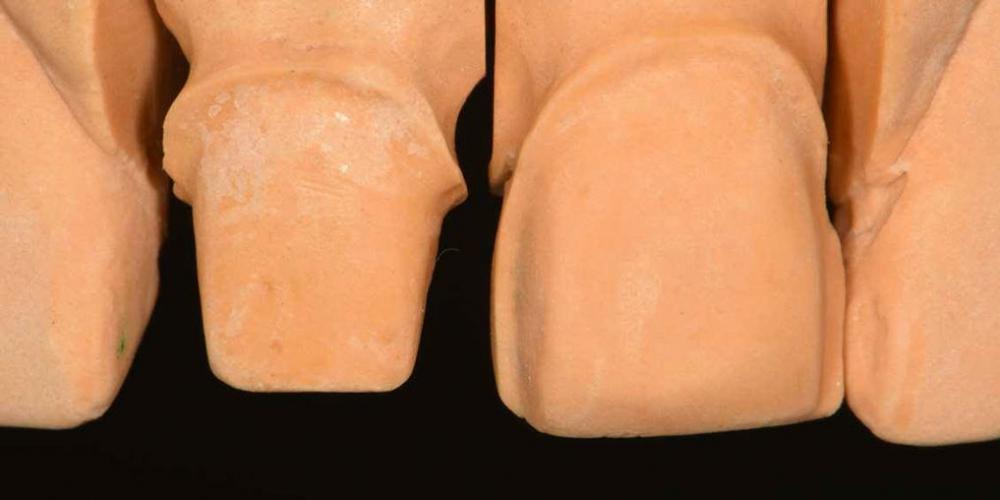 Модель. Эстетическая реабилитация центральных резцов верхней челюсти цельнокерамическими реставрациями e max