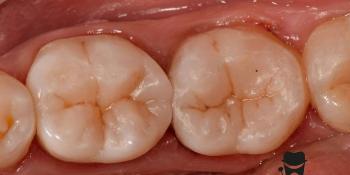 Лечение вторичного кариеса и прямая реставрация 3.6 и 3.7 зуба материалом Estelite Asteria фото после лечения