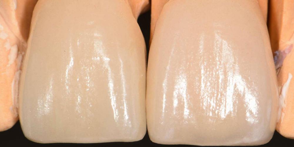 Примерка виниров на модели. Эстетическая реабилитация центральных резцов верхней челюсти цельнокерамическими реставрациями e max