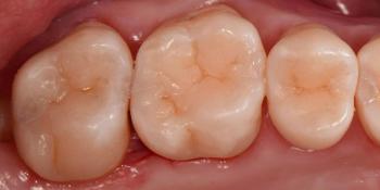 Реставрация трех жевательных зубов фото после лечения